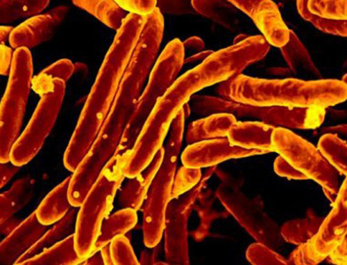 UH Researcher: Tuberculosis Could Be Eradicated in 26 years